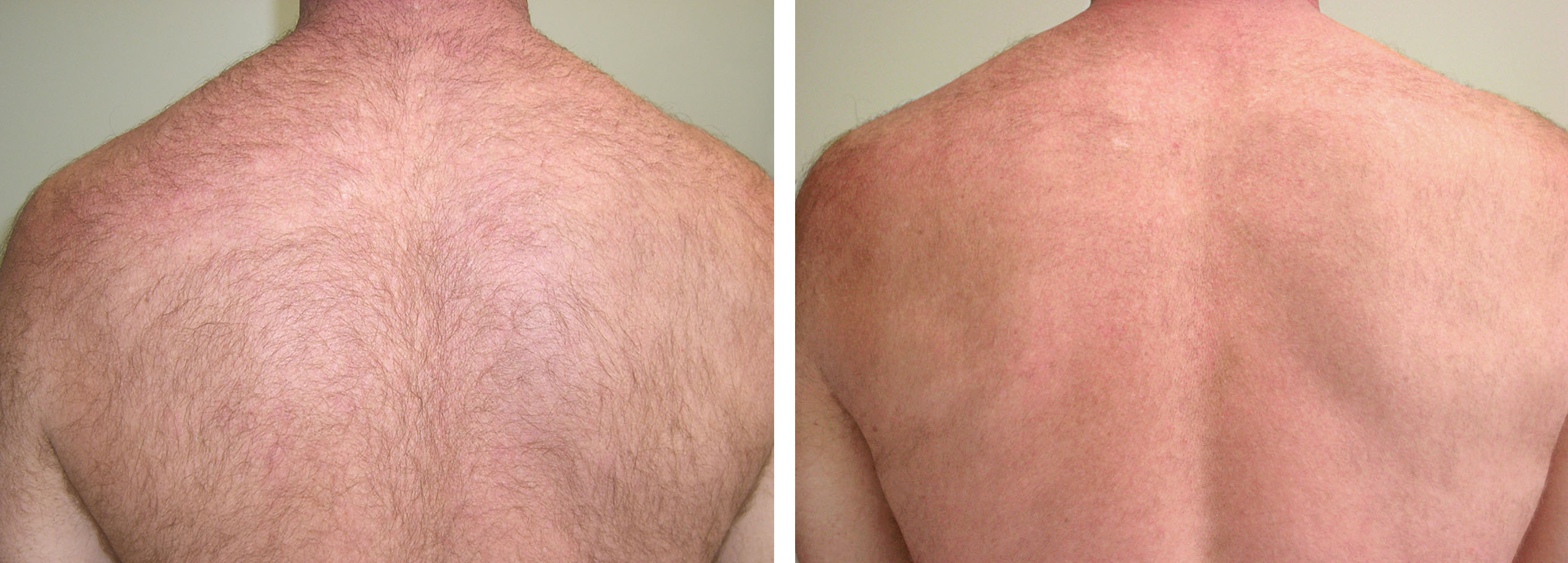 Skinvibbes Permanant Hair Reduction